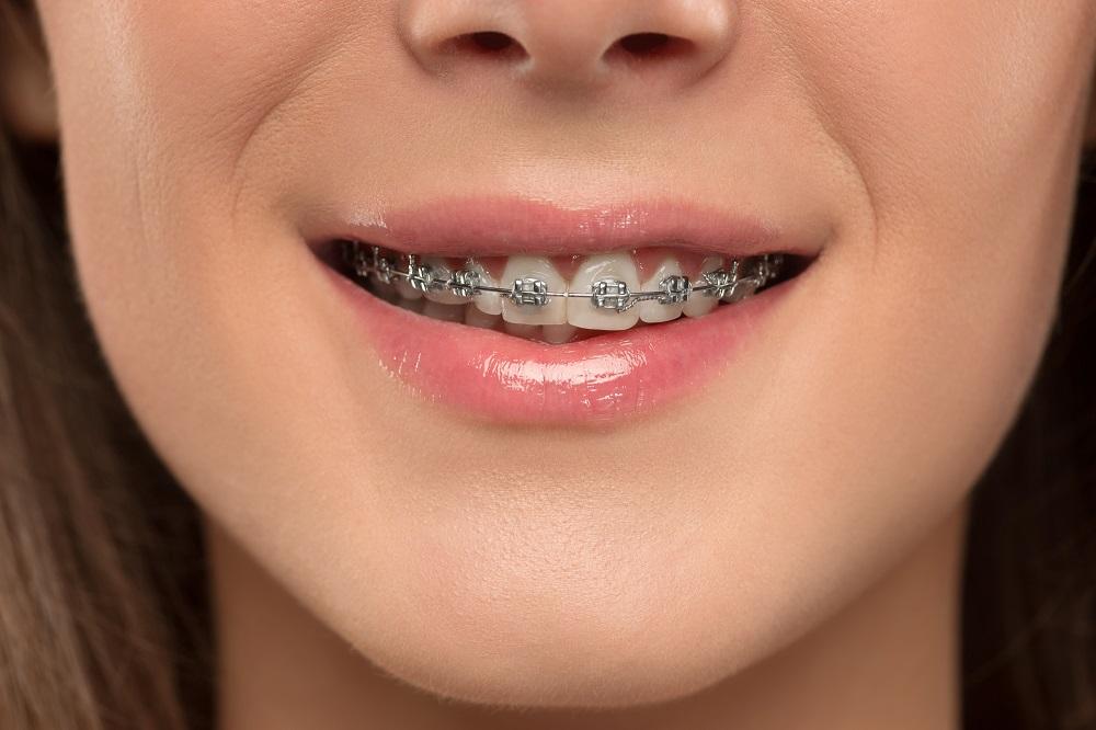 Salud y ortodoncia: cuida de tu dentadura en la Clínica Ferso